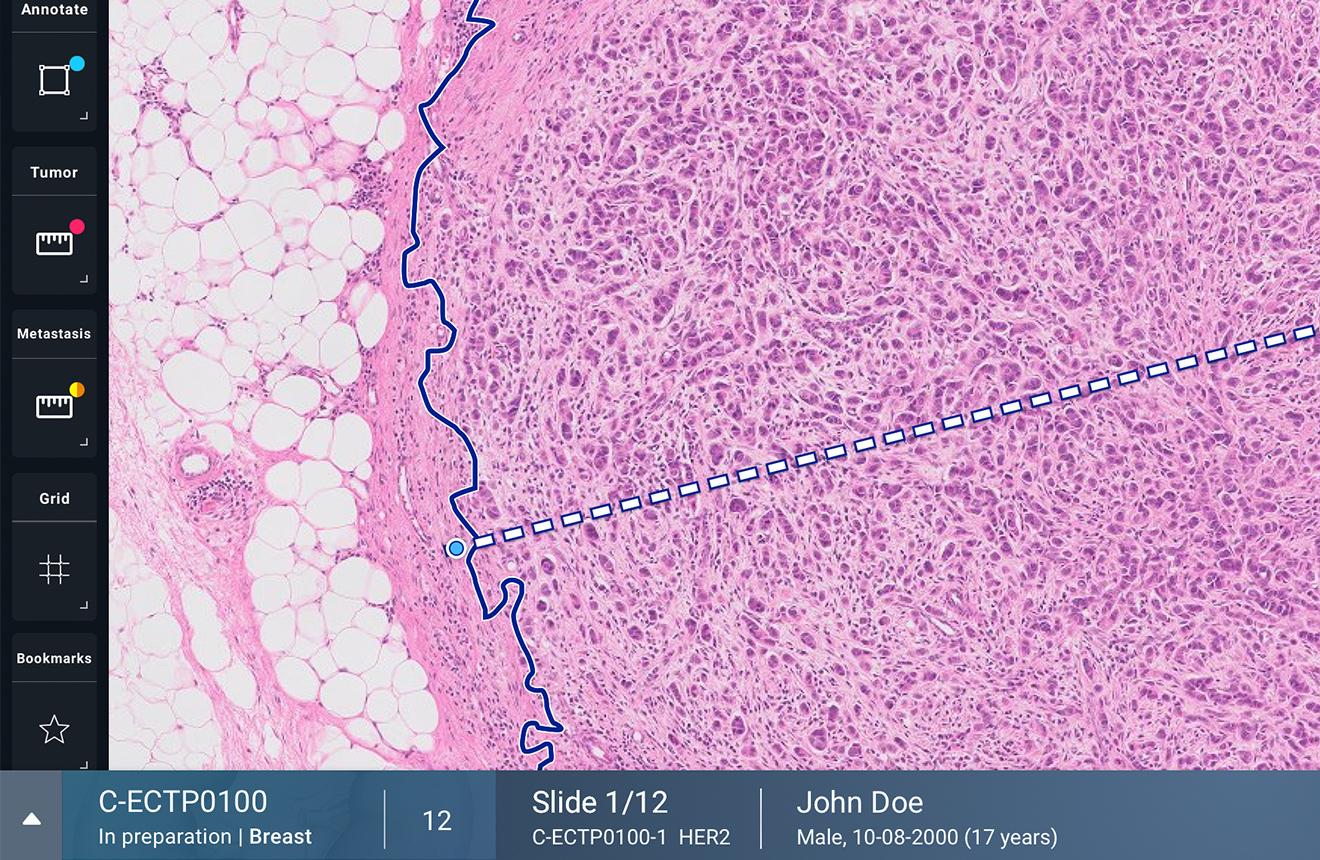 UX Design of Philips Digital Pathology - Viewer